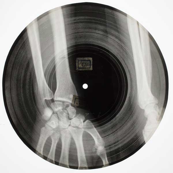 bone запись