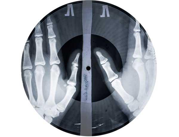 Рентгеновская пластинка